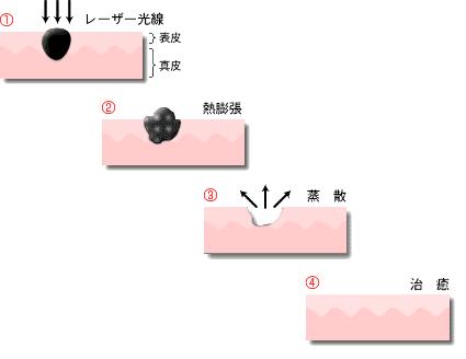 炭酸ガスレーザー